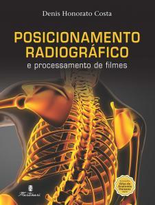 Posicionamento Radiográfico e Posicionamento de Filmes
