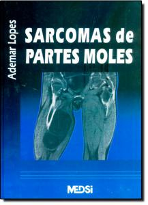 Sarcomas de Partes Moles